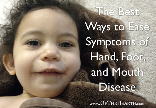 Have Hand foot mouth disease infants