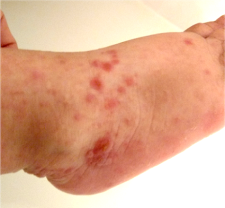 The blisters of hand, foot, and mouth disease