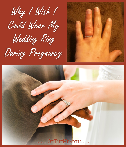 why i wish i could wear my wedding ring during pregnancy - Wedding Ring Rash